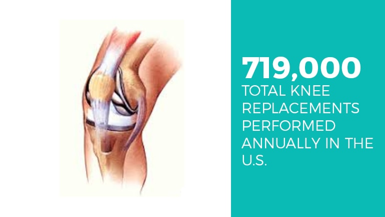 Miami Knee Implant Lawyer
